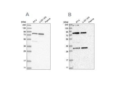 Anti-NOA1 Antibody