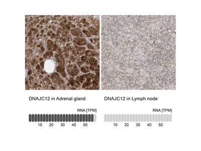 Anti-DNAJC12 Antibody