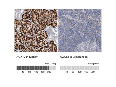 Anti-AGXT2 Antibody