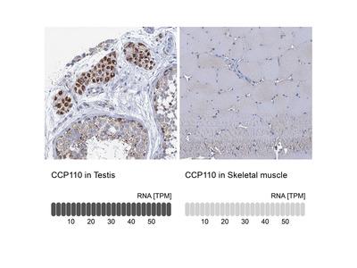 Anti-CCP110 Antibody