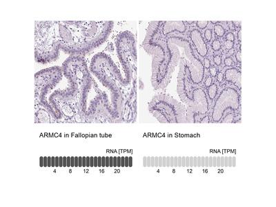 Anti-ARMC4 Antibody