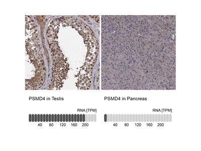 Anti-PSMD4 Antibody