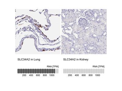 Anti-SLC34A2 Antibody