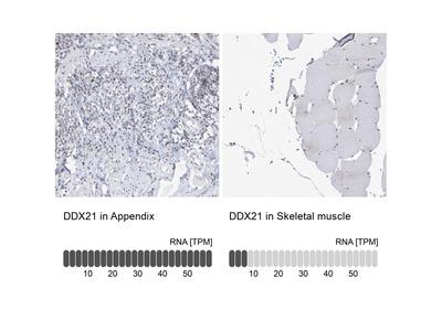Anti-DDX21 Antibody