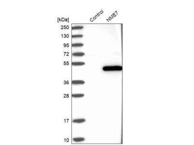 Anti-NME7 Antibody