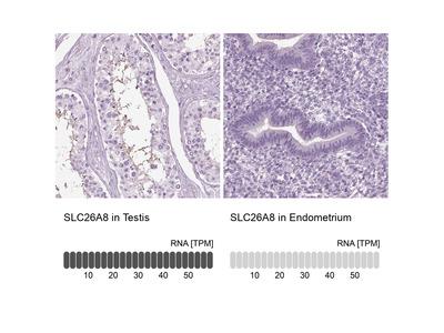 Anti-SLC26A8 Antibody