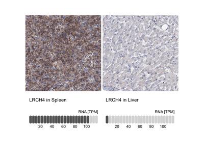 Anti-LRCH4 Antibody