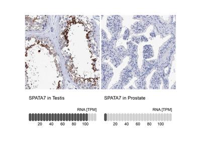 Anti-SPATA7 Antibody