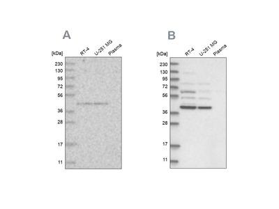 Anti-GPN1 Antibody