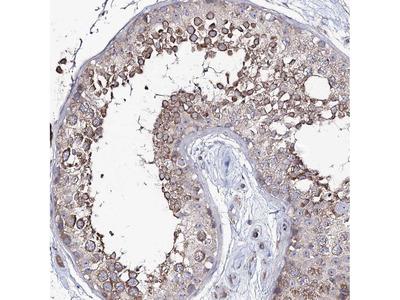 Anti-PUS3 Antibody