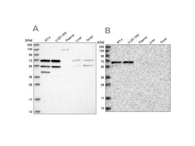 Anti-SIAE Antibody