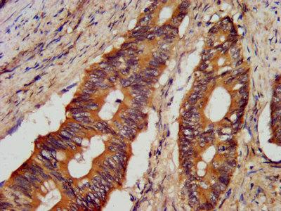 JPH1 Polyclonal Antibody