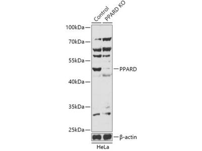 PPARD Polyclonal Antibody