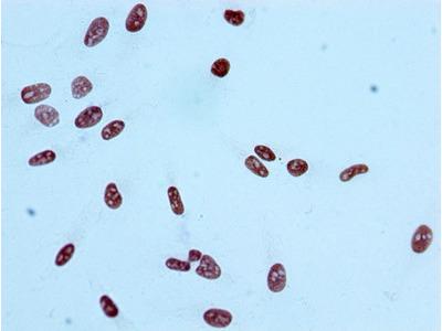 Histone H2AB/EK9ac (Acetyl H2AB/EK9) Monoclonal Antibody [RMC385A]