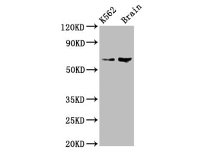 BRAP Polyclonal Antibody