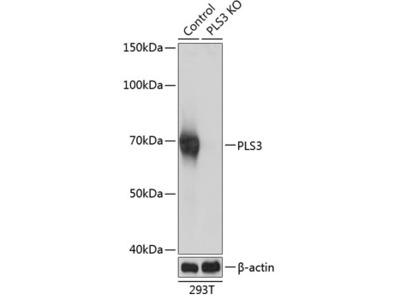 PLS3 Polyclonal Antibody