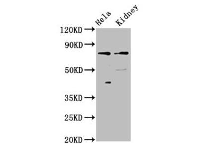 CLCNKB Polyclonal Antibody