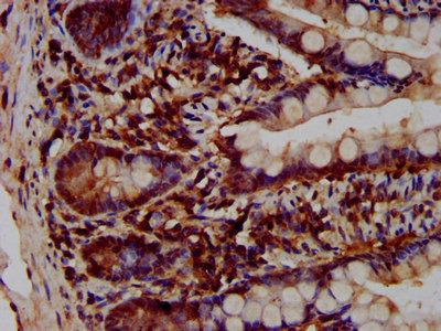 VPS52 Polyclonal Antibody