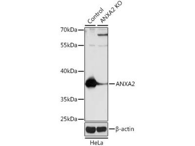 ANXA2 Polyclonal Antibody