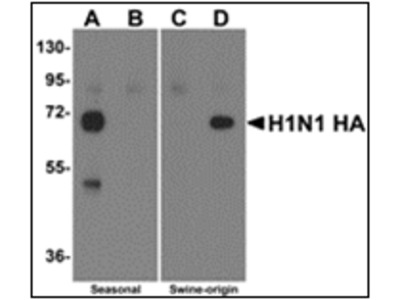 anti Seasonal H1N1 Hemagglutinin (Hemagglutinin)