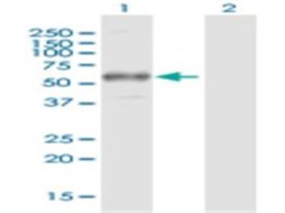 Fc gamma RI / CD64 Antibody