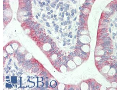 SLC41A1 Antibody