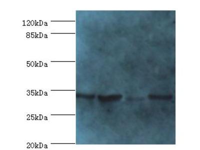 METRNL Antibody