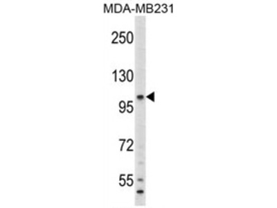 Complement Component 6 (C6) (N-term) rabbit polyclonal antibody