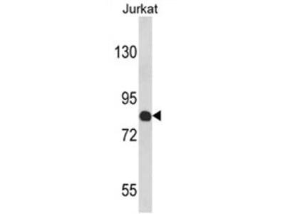 COMP (Center) rabbit polyclonal antibody