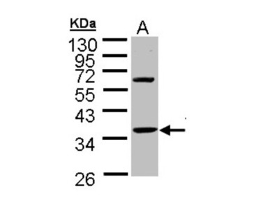 Rabbit Polyclonal Troponin T type 1 (slow skeletal) Antibody