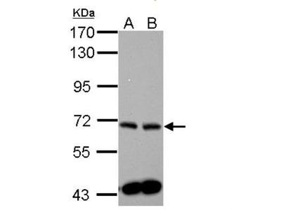 Sphingosine Kinase 2 /SPHK2 Antibody