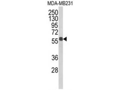 anti ALDH3B1 / ALDH7