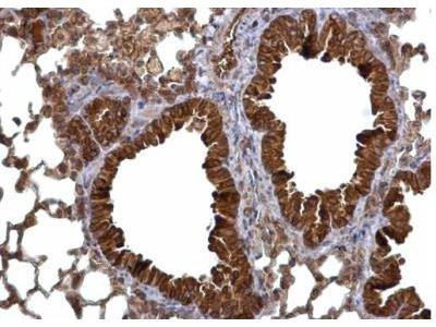 Calcium-binding-protein-P22 Antibody