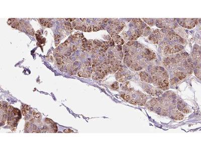 Anti-PACS2 antibody