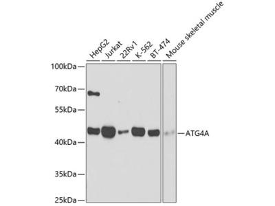 Anti-ATG4A antibody