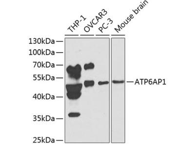 Anti-ATP6AP1 antibody