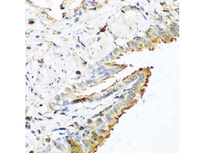 Anti-RNase 13 antibody