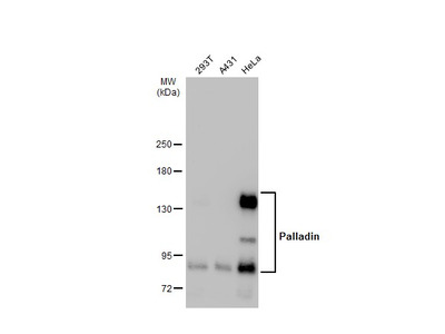 Anti-Palladin antibody