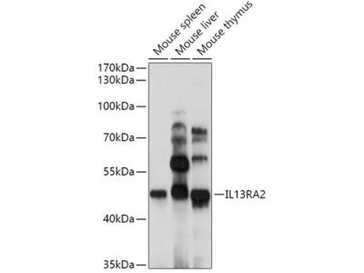 Anti-IL13 Receptor alpha 2 antibody