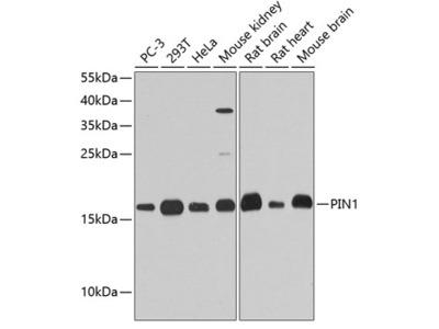 Anti-PIN1 antibody