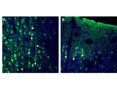 Anti-CX3CL1 (extracellular) Antibody