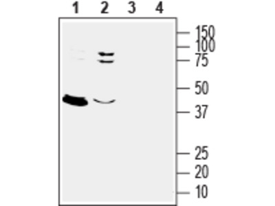 Anti-GPER1/GPR30 (extracellular) Antibody