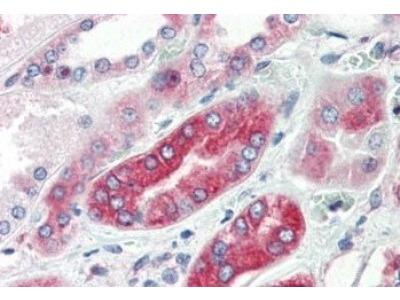 Rabbit Polyclonal V1a Vasopressin R / AVPR1A Antibody