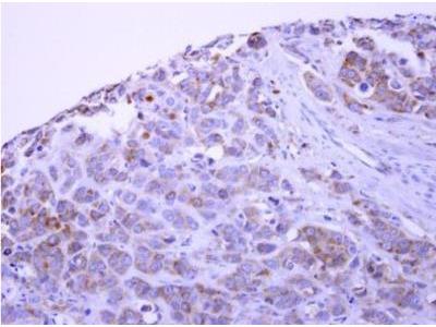 PACSIN1 Antibody