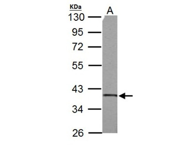 Rabbit Polyclonal SUCLG1 Antibody