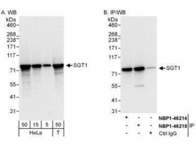GCR2 Antibody