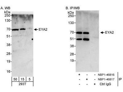 EYA2 Antibody
