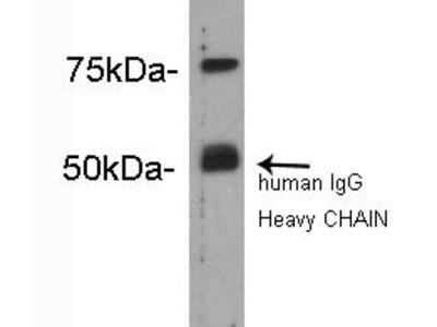 Complement C4(beta chain) Rabbit Polyclonal Antibody (0809-9)