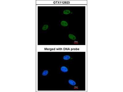 ERCC3 / XPB Antibody