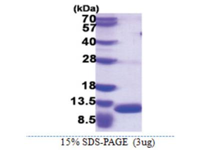 S100A8 / Calgranulin-A / MRP8 (1-89, His-tag)